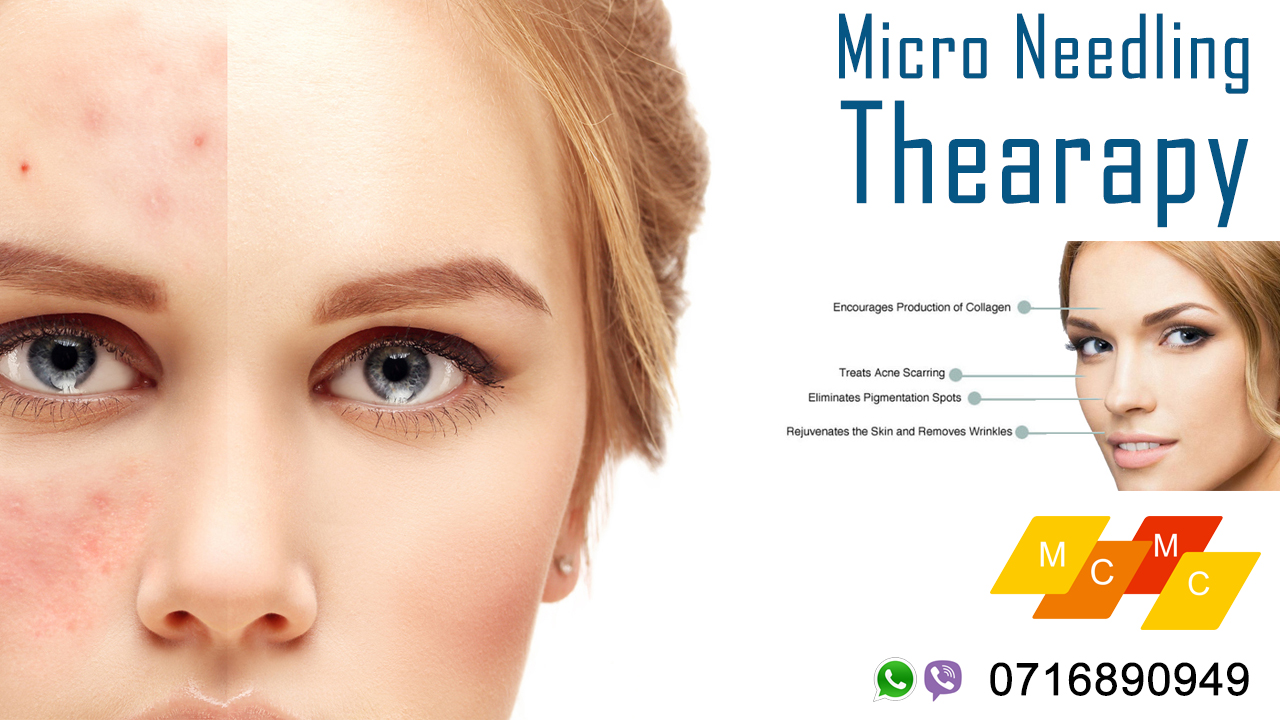 Micro Needling Therapy – McTern